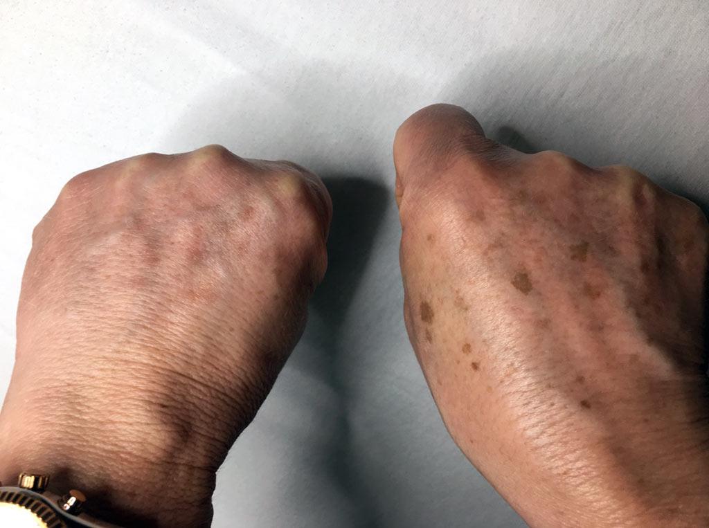 Entfernung von Pigmentstörungen und Altersflecken (Vorher, Nachher)