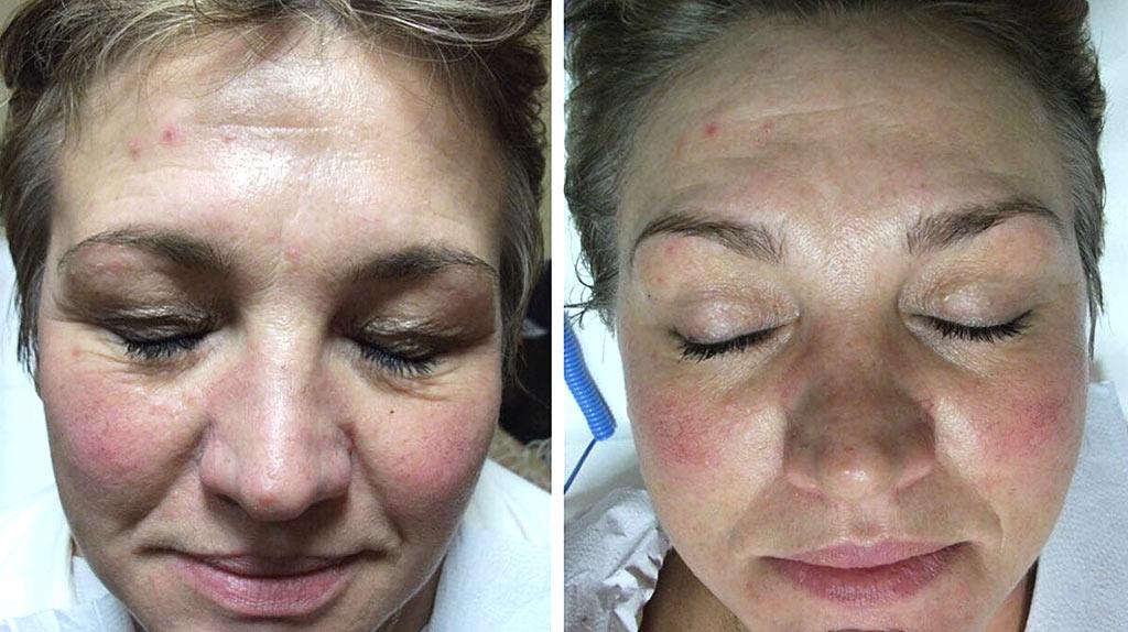 Schluplider-Behandlung (Vorher und Nachher)